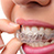 5 Reasons To Get Teeth Whitening Treatment